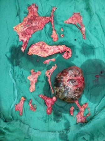 Central Pancreatectomy for Pancreatic Adenocarcinoma